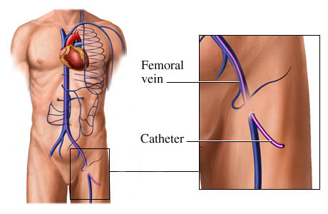 Catheter Placement In The Femoral Vein