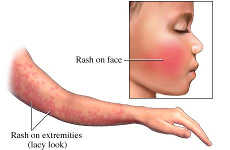 Fifths disease pregnancy treatment