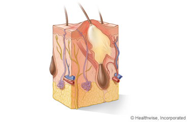Picture of layers and structures of the skin