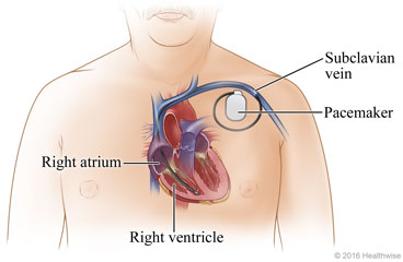 Pacemaker Placement: What to Expect at Home