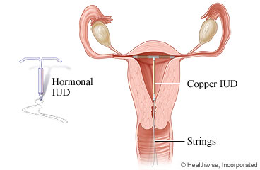 intrauterine device (iud) insertion care instructions IUD Pain
