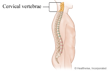 surgery for cervical myelopathy what to expect at home