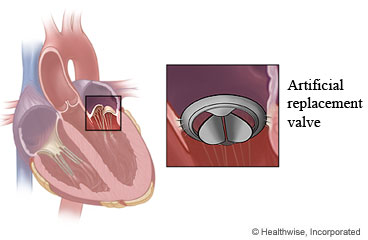 Mitral Valve Repair or Replacement Surgery: What to Expect