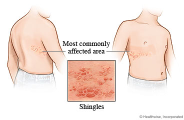 Shingles Care Instructions
