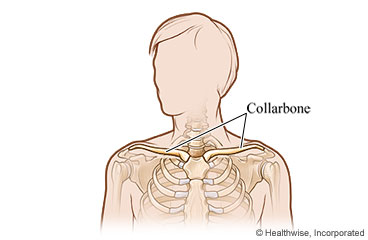 Broken collarbone care instructions ccuart Images