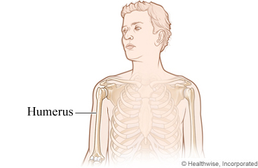 humerus fracture care instructions