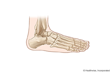 A study to assess the impact of foot care instruction on diabetic.