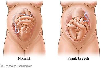 Turning a Breech Baby: Care Instructions