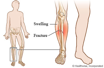 Broken Lower Leg: Care Instructions