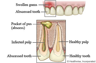 Abscessed Tooth: Care Instructions