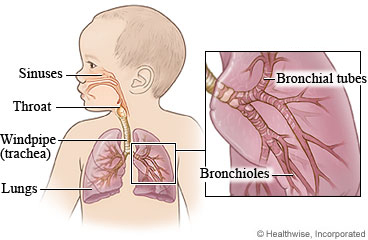 croup in toddlers steroids