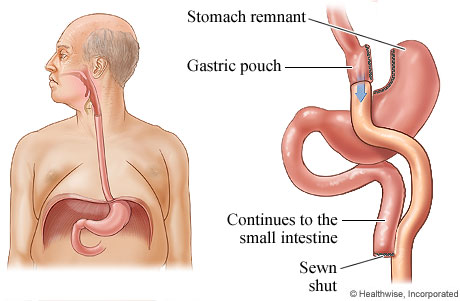 obesity and gastric bypass surgery Gastric bypass is the current gold standard procedure for weight-loss surgery, according to the american society for bariatric surgery and the national institutes of health (nih) this procedure bypasses most of the stomach and the first part of the samll intestine.