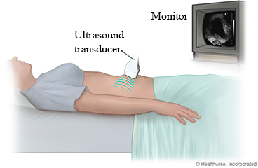 Pelvic Ultrasound for Women: About This Test