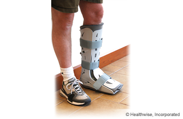 Orthopedic Boot: Care Instructions