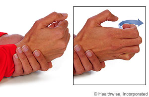 Finger Fracture: Rehab Exercises