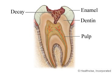 Tooth And Gum Pain In Children Care Instructions