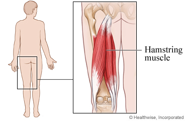 How do you know if you have pulled a muscle?