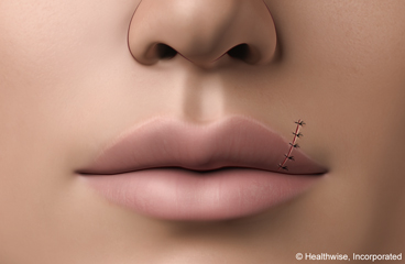 Lip Laceration: Care Instructions