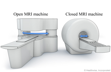 magnetic resonance imaging mri about this test