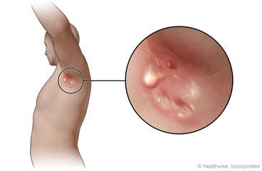 Hidradenitis Suppurativa: Care Instructions