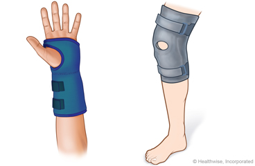 Wearing a Splint: Care Instructions