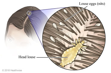 Head Lice: Care Instructions