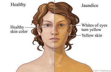 Jaundice: Care Instructions