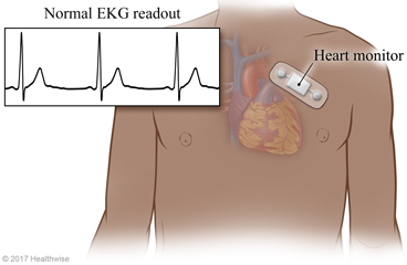 Continuous Heart Monitoring: About This Test