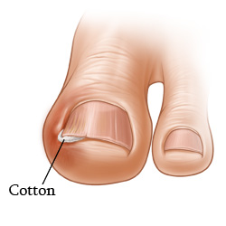 Ingrown Toenail In Children Care Instructions