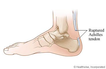 Achilles Tendon Repair: What to Expect at Home