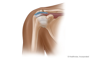 Shoulder Arthroscopy: What to Expect at Home
