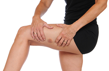 contusion care instructions