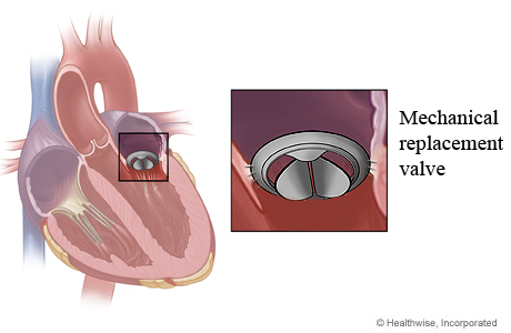 the mechanical hearth valve essay Mechanical valves are made from manufactured materials and designed to last a lifetime they typically do not wear out or break down with more than 30 years of heart valve expertise, st jude medical is committed to the advancement of heart valve technology.