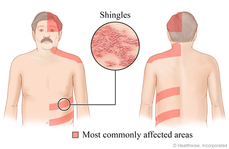 Shingles Location