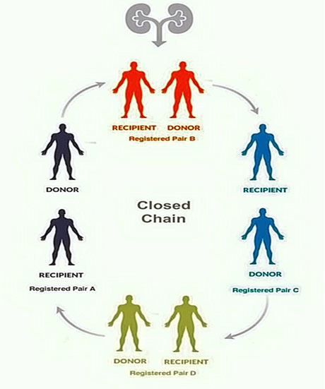 closed-chain-jpg