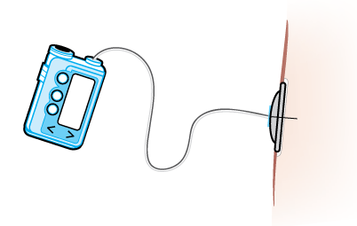 Cannula-Pump-with-tubing.png