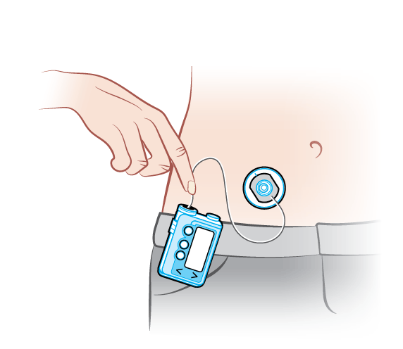 insulin-pump-with-tubing.png