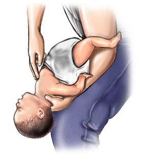 Picture of choking rescue procedure (Heimlich manoeuvre) with baby face up