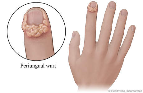 Periungual wart on finger