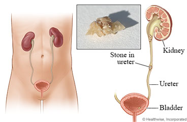 how to help ush urine when passing a stone
