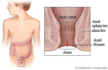 Anal Fissure In Children Care Instructions