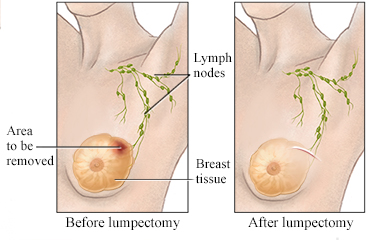 how to find out if you have breast cancer