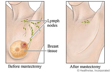 learning about mastectomy