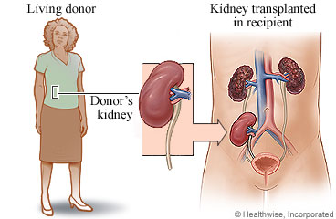 Kidney Transplant: Before Your Surgery