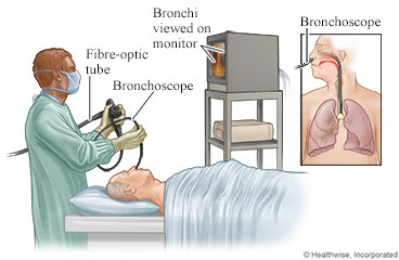 Bronchoscopy tube inserted into throat and viewed on a monitor