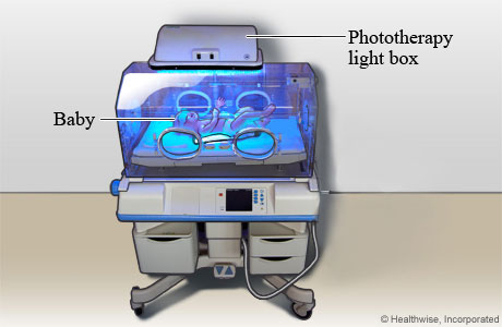 Baby getting phototherapy for jaundice
