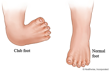 Club foot and normal foot