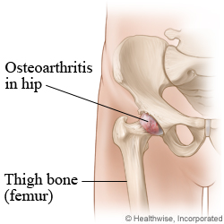 Picture of osteoarthritis of the hip