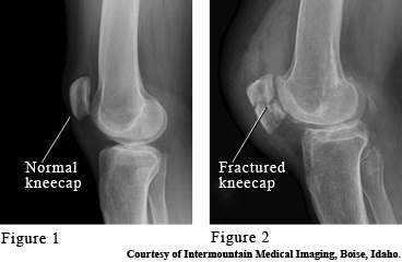 Images of a normal and broken kneecaps