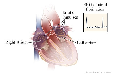 Erratic impulses in heart during atrial fibrillation and resulting EKG